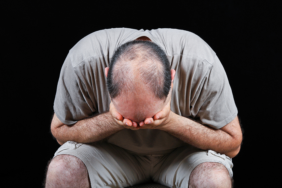 The Emotional Aspects of Hair Loss