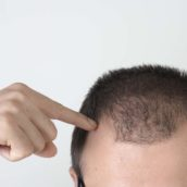 The Risks of Hair Transplant Surgery
