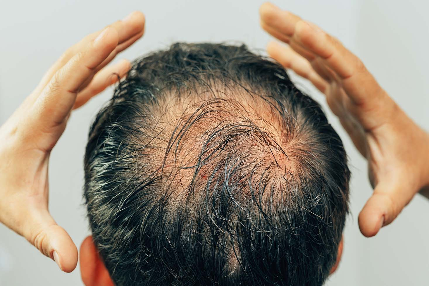 Postpartum Alopecia
